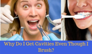 Why Do I Get cavities