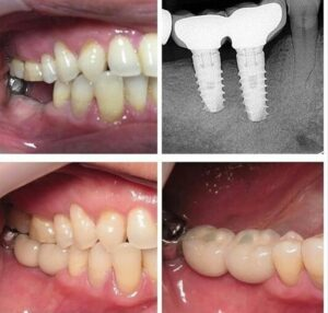 Dental Implant In Bangalore