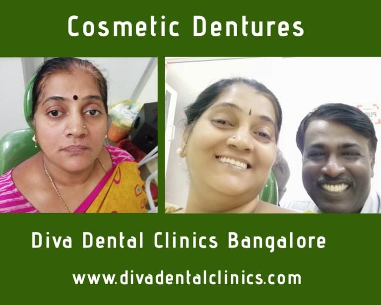 Diva Dental Clinics Bangalore
