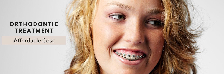 Orthodontic Treatment Bangalore