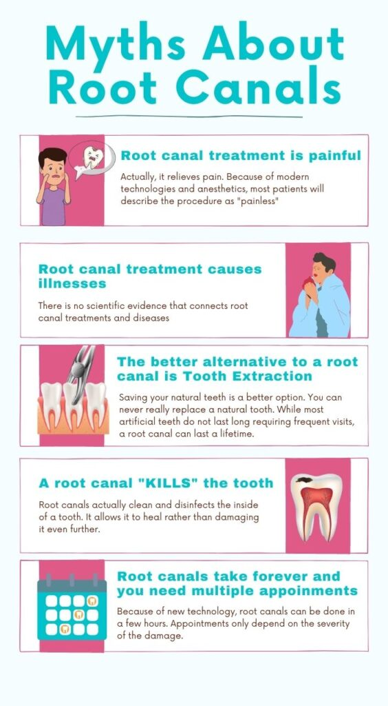 Myths About Root Canal Treatment