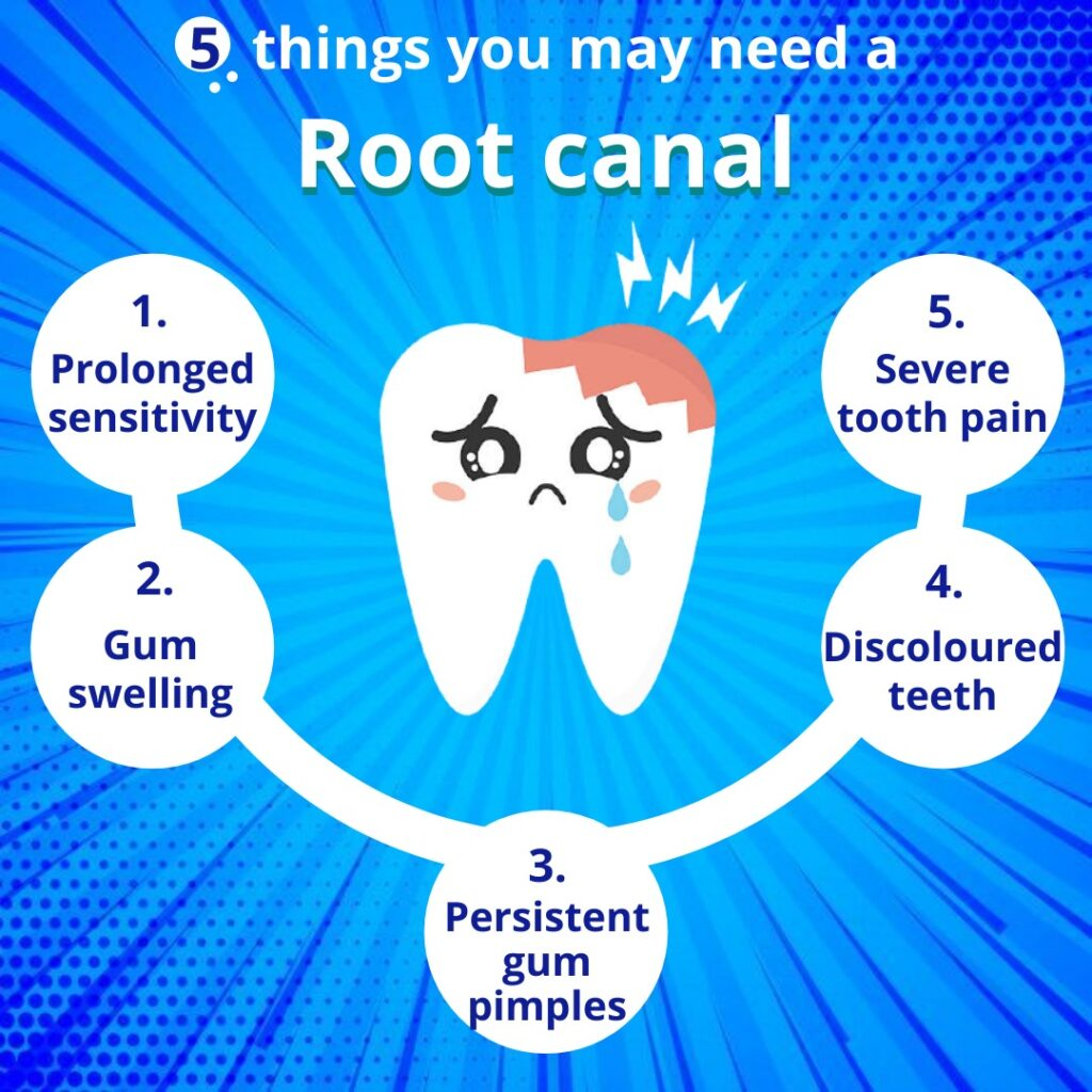Reasons For Root Canal Treatment