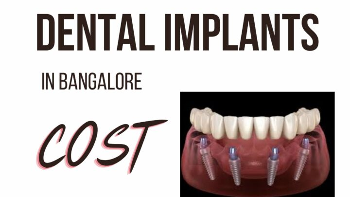 Cost Of Dental Implant In Bangalore