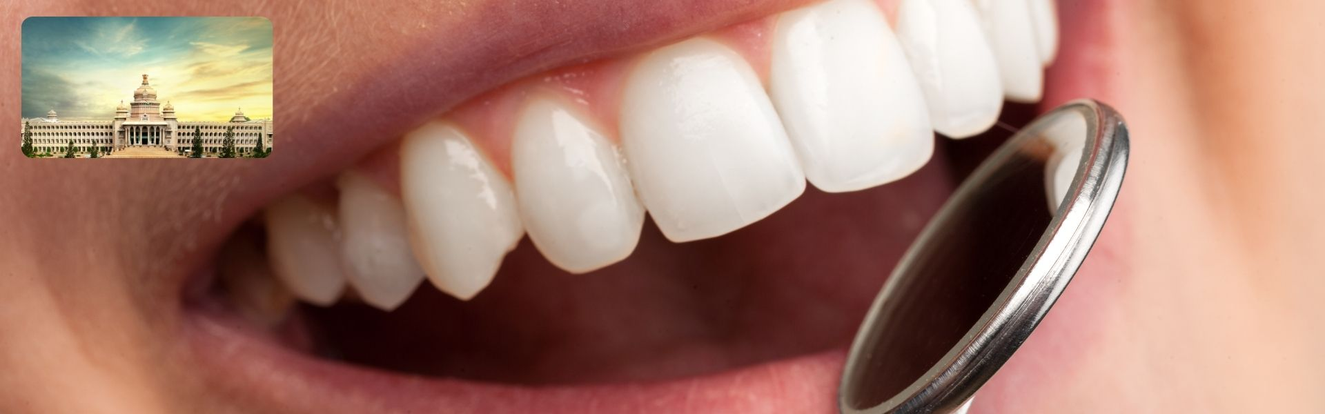 Dentist-Clinics-In-Bangalore